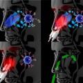 Action du Medinose Plus (produit pour allergie)