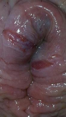 conséquences hémorroide