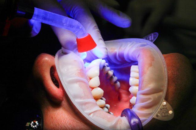 traitements des orthodontistes